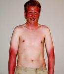 Не спалити шкіру
