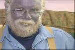 Пауль Карасон (Paul Karason) став застосовувати колоїдне срібло 15 років тому. Він займався самолікуванням: намагався вилікувати дерматит, для чого втирав концентрат колоїдного срібла собі в шкіру і пив настоянку. Карасон досі п'є колоїдне срібло, він вважає, що це ліки від усіх хвороб.